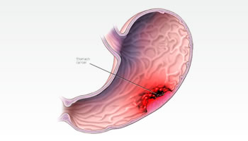 Gastric Cancer Treatment