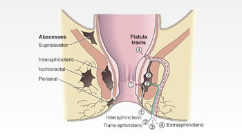 Perianal Fistula and Abscess