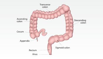 Colon and Rectum Cancer