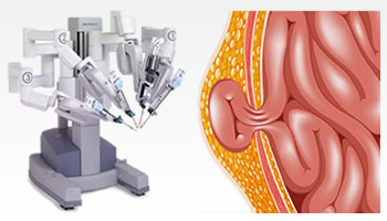 Robotic Umbilical Hernia Surgery