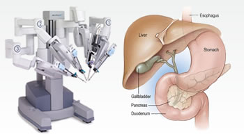 Robotic Gall Bladder Surgery